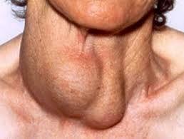 остання стадія захворювання щитовидки