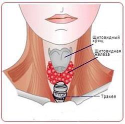 Характерні симптоми порушення робота щитовидної залози