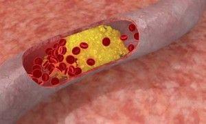 Холестерин в крові