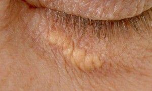 Холестеринові бляшки біля очей