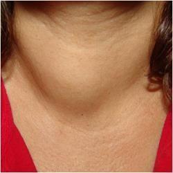 Хронічний аутоімунний тиреоїдит з результатом в гіпотиреоз: симптоми і лікування