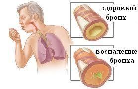 Хронічний бронхіт, чому «підводить дихалка»?