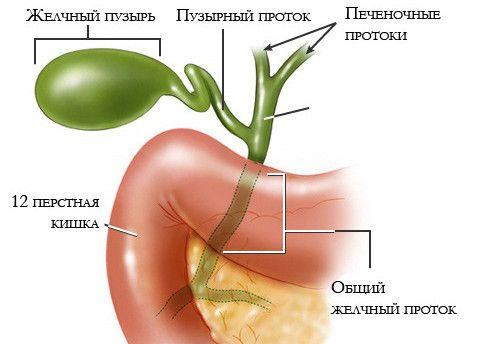 Хронічний холецистит