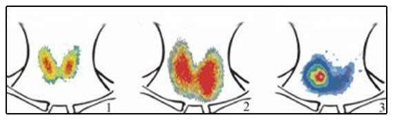 Зображення результатів сцинтиграфії