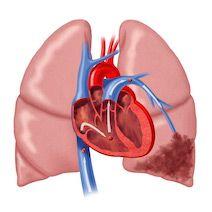 Інфаркт легені: причини, ознаки, як лікувати, наслідки