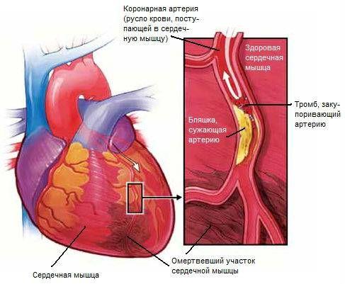 Атеросклероз коронарних судин