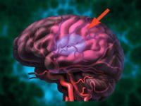 Ішемічний інсульт мозку і його лікування