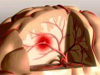 Основні симптоми наближається інсульту