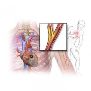 Ішемія міокарда: причини, симптоми, діагностика, лікування