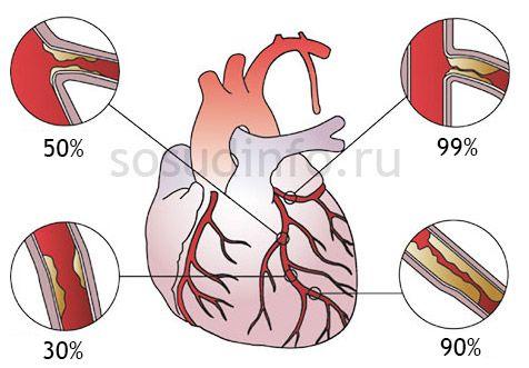 Різні стадії атеросклеротичного ураження при серцевій ішемії