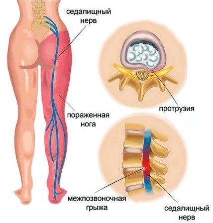 Запалення сідничного нерва