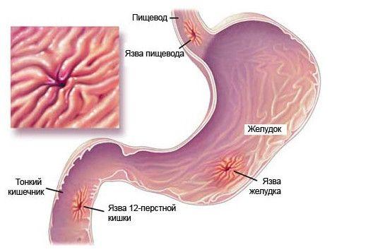 Виразка шлунка і дванадцятипалої кишки