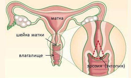 Причини ендоцервікоз шийки матки і методи лікування