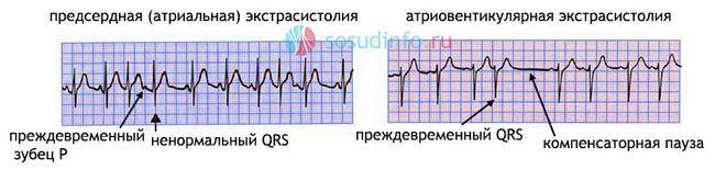 надшлуночкові екстрасистолії на ЕКГ