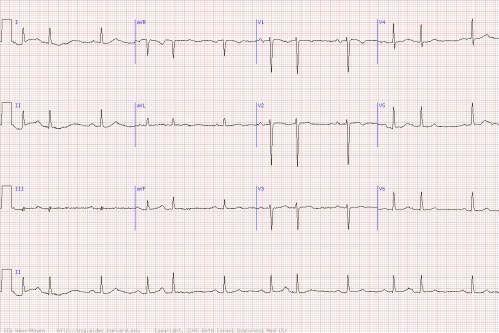 кардіограма при передсердній екстрасистолії
