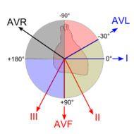 Електрична вісь серця (еос): суть, норма положення і порушення