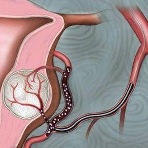 Емболізація артерій при матковій міомі: показання, процедура, результат