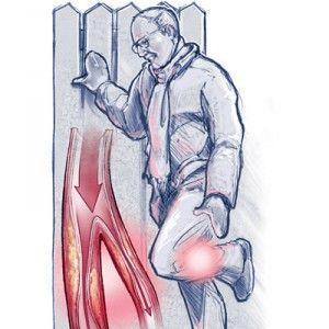 Ендартеріїт: ознаки, діагностика, перебіг і купірування хвороби, превентивні заходи