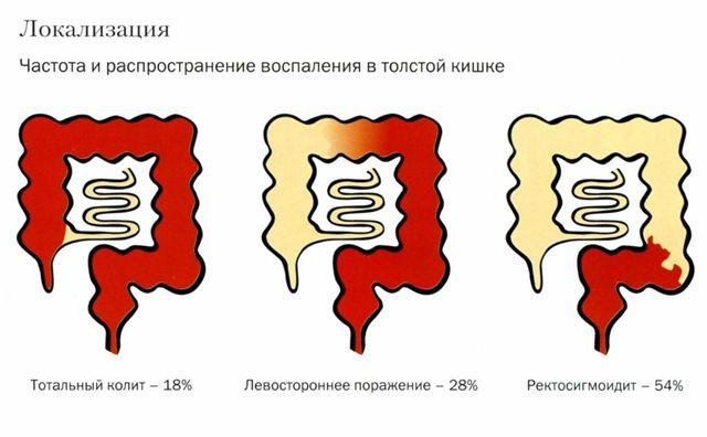 Перелом головки променевої кістки