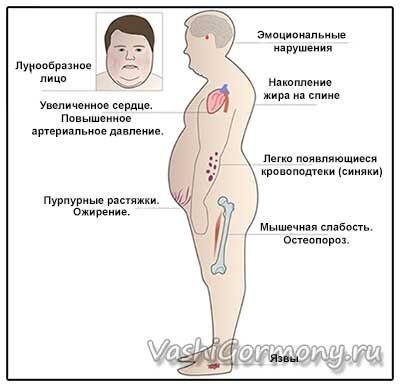 Малюнок-схема із зображенням симптомів гіперкортицизму