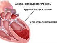 Серце при серцевій недостатності
