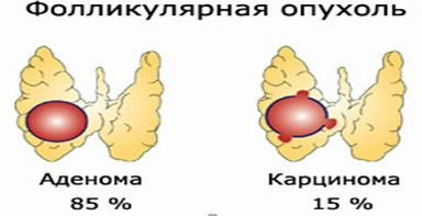 фолікулярна пухлина