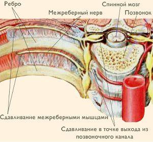 Як відрізнити міжреберної невралгії від болю в серці