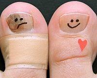 Як перемогти грибок на нігтях ніг