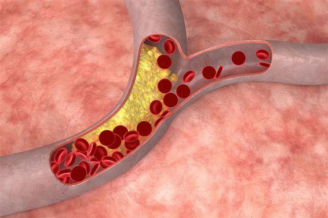 Як знизити холестерин в домашніх умовах
