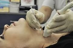 пункційна біопсія щитовидки