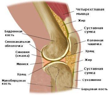 Як проявляється артрит колінних суглобів