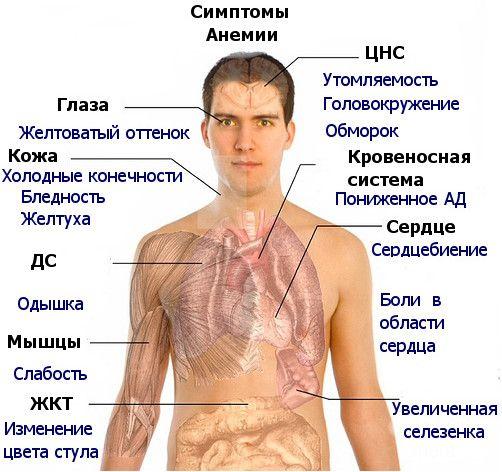 Як проявляється залізодефіцитна анемія