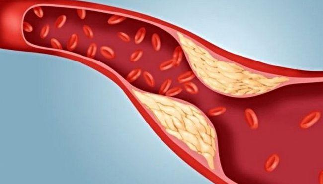як і за допомогою чого можна знизити рівень холестерину в крові