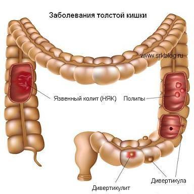 захворювання кишки