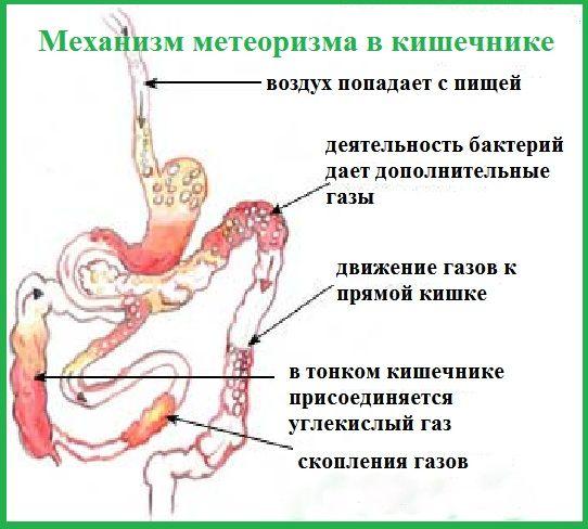 Недорогі і ефективні ліки від здуття живота