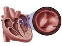 Стеноз аортального клапана (аортальний стеноз)
