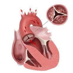 Кальциноз серця і судин: виникнення, ознаки, діагностика, лікування