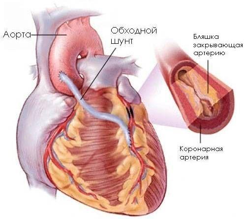 аортокоронарне шунтування