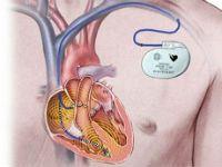 Кардіостимулятор для серця