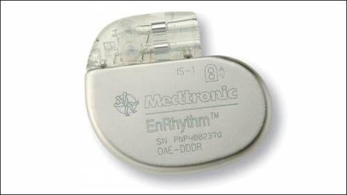 кардіостимулятор