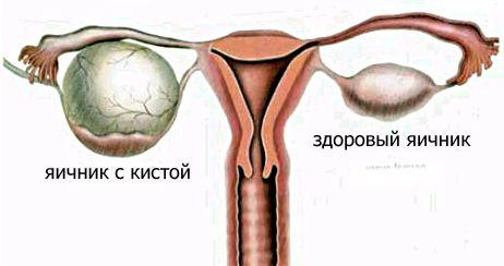 Кіста яєчника