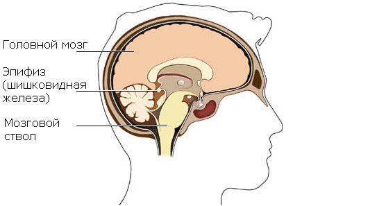 Епіфіз - шишковидная заліза і кіста