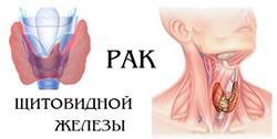 Ракова пухлина щитовидної залози