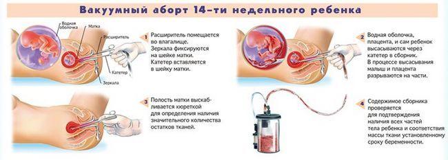 вакуумний аборт