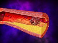 Тромбоз артеріального судини