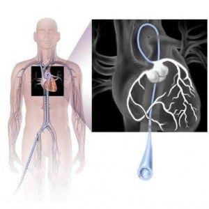 Коронарографія серцевих судин: як роблять, свідчення, наслідки