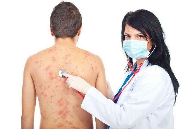 Шкірний висип при алергії