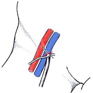 Кросектомія (операція троянова-тренделенбурга): показання, проведення, реабілітація