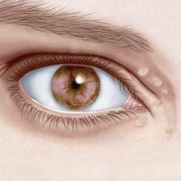 Ксантелазми (ксантоми) століття, шкіри: причини, симптоми, як лікувати