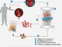 схема плазмаферезу